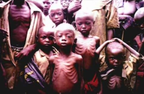 starving children (2)